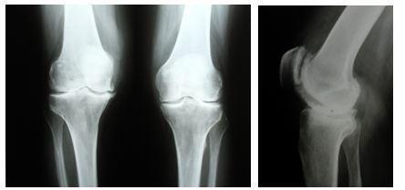 остеоартроз колінного суглоба