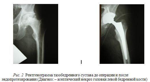 Изображение - Эндопротезирование тазобедренного сустава украина AsepicheskiyNekroz