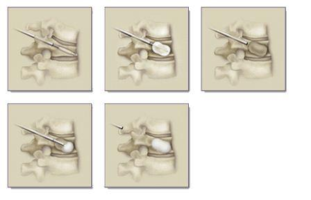 Етапи кіфопластики