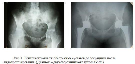 Изображение - Эндопротезирование тазобедренного сустава украина KoksAndroz