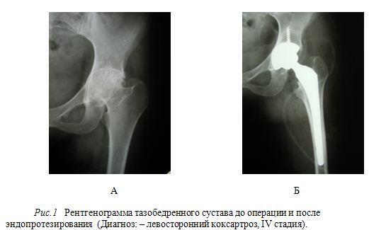Тазобедренный сустав ендопротезування могут ли возникнуть проблемы с суставами после родов