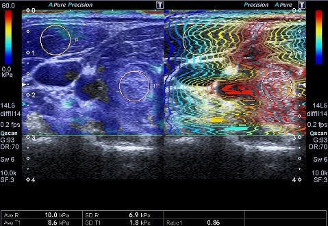 Эластография коленного сустава как лечить сустав бедра
