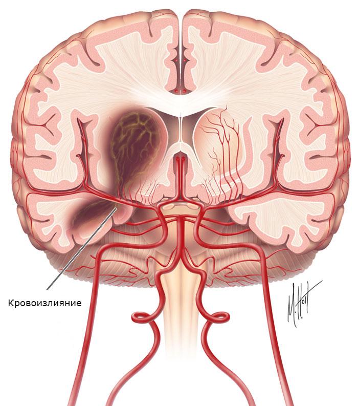 Кровоизлияние в мозг у беременных 64